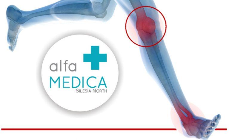 Innowacyjne metody w ortopedii