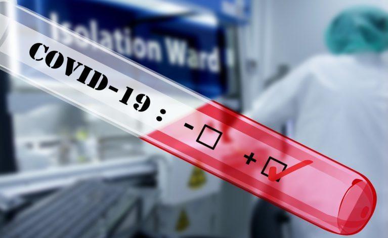 Unimot przekaże rządowi testy na koronawirusa