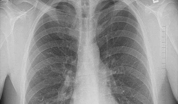 Skorzystaj z badań przesiewowych płuc